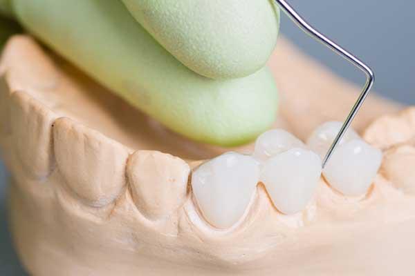 Model Of Porcelain Dental Bridge