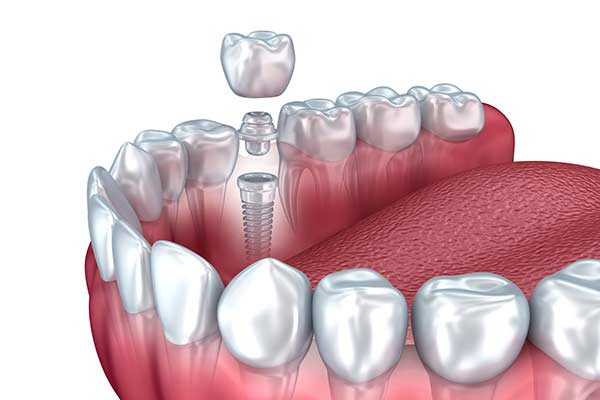 Illustration of Restorative Dental Implant Restorations