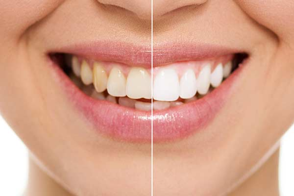 Before and After Showing Benefit of Zoom Teeth Whitening