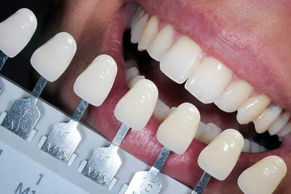 Tooth Shade Guide For Restorative Composite Fillings/Bondings